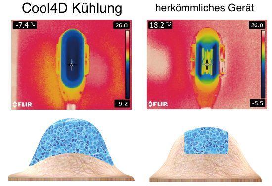 Kryolopolyse: Vergleich herkömmliches und Vollkopfkühlungssystem