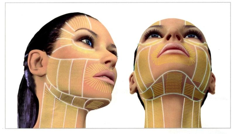 Ulthera Facial Thermal Coagulation Points